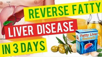 Fatty Liver Remedy, Health Support Hub
