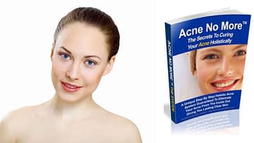 Acne No More – A Unique Step By Step Holistic Acne System Guaranteed To Eliminate Your Ance From The Inside Out Giving You Lasting Clear Skin